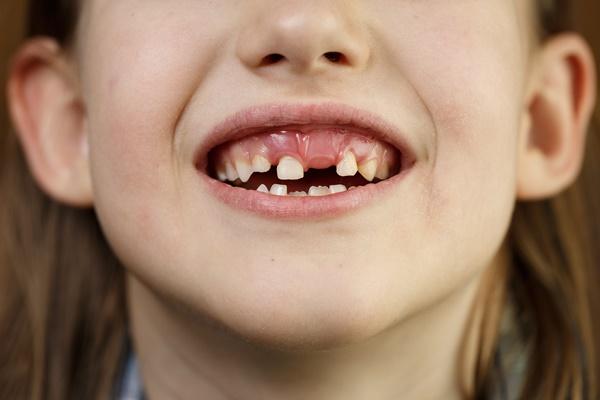 歯が半分なくなるイメージ