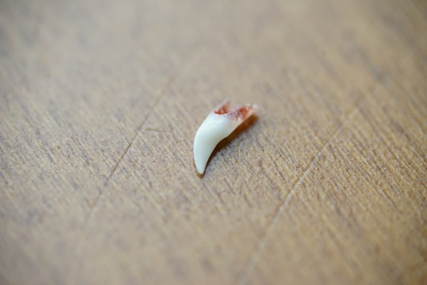 犬歯が抜けるイメージ