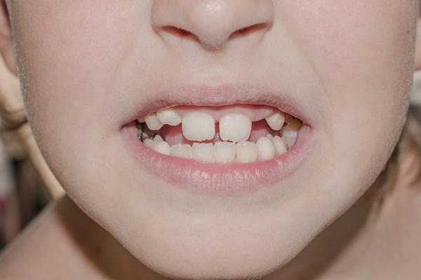 抜けた歯が生えてくるイメージ